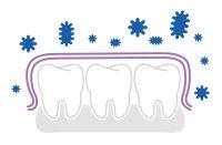 Kada četkica za zube i međuzubna četkica nisu dovoljni